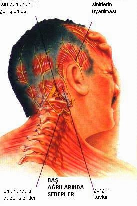 migren-hacamat